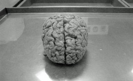 188_brain